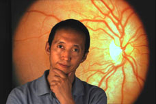 Alzheimer's lesions found in the retina