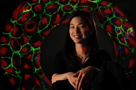 UCI researcher Wendy Liu is trying to make the lifesaving devices less life-threatening